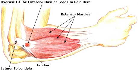 tennis elbow pic
